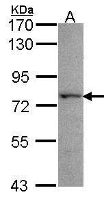 KARS Antibody (PA5-27633) in Western Blot