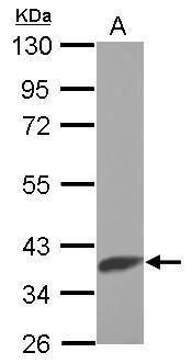 SLC25A1 Antibody (PA5-27637)