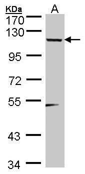 TSHZ1 Antibody (PA5-27647)