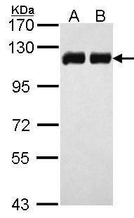 TRIM28 Antibody (PA5-27648) in Western Blot