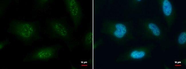 XBP1 Antibody (PA5-27650) in Immunofluorescence