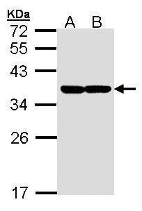 XBP1 Antibody (PA5-27650) in Western Blot