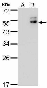 DPF2 Antibody (PA5-27651) in Western Blot