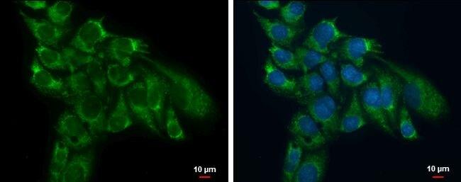 TSFM Antibody (PA5-27652) in Immunofluorescence