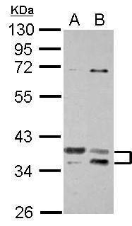 TSFM Antibody (PA5-27652) in Western Blot