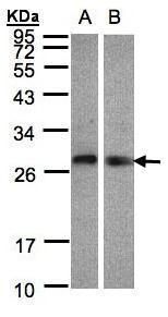 LYPLA2 Antibody (PA5-27653)