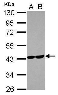 Aldolase C Antibody (PA5-27659) in Western Blot