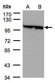 EEF2 Antibody (PA5-27662) in Western Blot