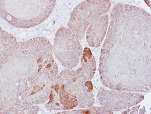 PSMD3 Antibody (PA5-27664) in Immunohistochemistry (Paraffin)