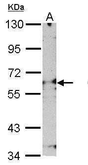 PSMD3 Antibody (PA5-27664) in Western Blot