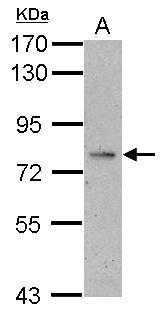 ALS Antibody (PA5-27667) in Western Blot