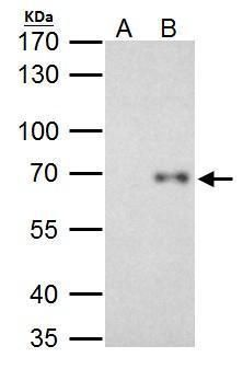 RelB Antibody (PA5-27679) in Immunoprecipitation