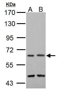 TAK1 Antibody (PA5-27680) in Western Blot