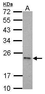 Caspase 6 Antibody (PA5-27683) in Western Blot
