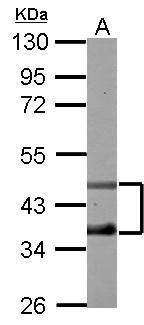 DP2 Antibody (PA5-27685)