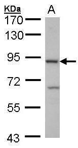 Cbl-b Antibody (PA5-27692) in Western Blot