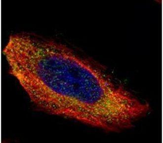 MEK1 Antibody (PA5-27693)