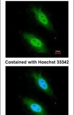 CARD8 Antibody (PA5-27695) in Immunofluorescence