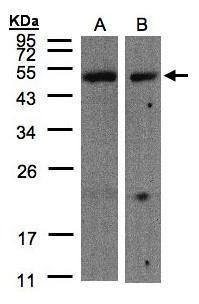 CARD8 Antibody (PA5-27695) in Western Blot