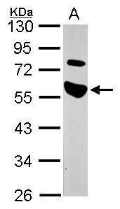 TRAIP Antibody (PA5-27699) in Western Blot