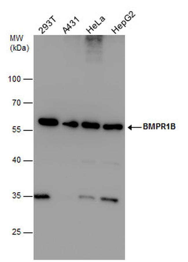 CDw293 Antibody (PA5-27712) in Western Blot