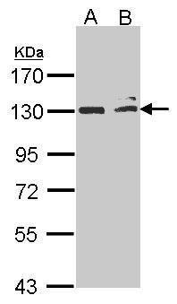 NIK Antibody (PA5-27713) in Western Blot
