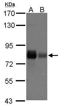 Caldesmon Antibody (PA5-27719) in Western Blot