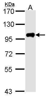 Calpain 3 Antibody (PA5-27721) in Western Blot