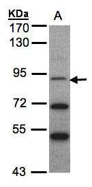 TrkC Antibody (PA5-27729) in Western Blot