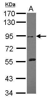 DDR2 Antibody (PA5-27730) in Western Blot