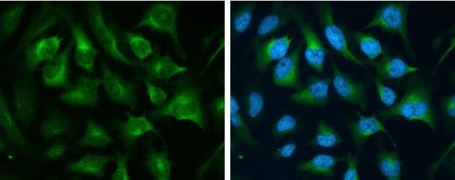 Transferrin Receptor Antibody (PA5-27739) in Immunofluorescence
