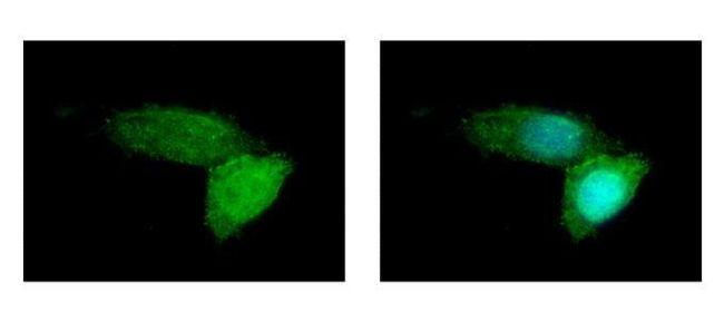 ABCB11 Antibody (PA5-27742) in Immunofluorescence