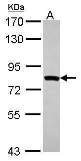 MTMR2 Antibody (PA5-27748) in Western Blot
