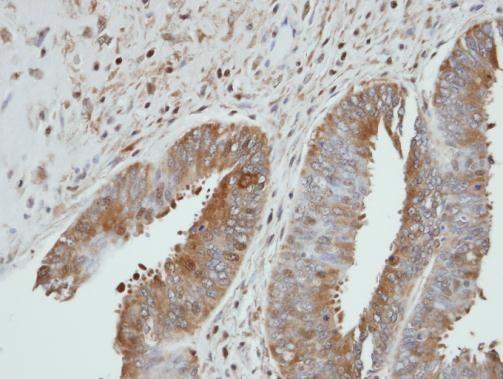 UGP2 Antibody (PA5-27760) in Immunohistochemistry (Paraffin)