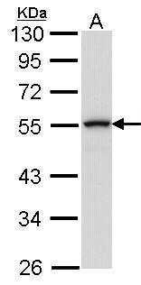 COT Antibody (PA5-27767) in Western Blot