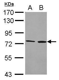 CYP4F2 Antibody (PA5-27769) in Western Blot
