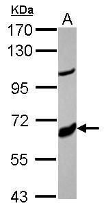 CYP17A1 Antibody (PA5-27777) in Western Blot