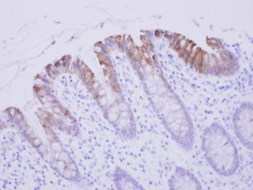 Biglycan Antibody (PA5-27781) in Immunohistochemistry (Paraffin)