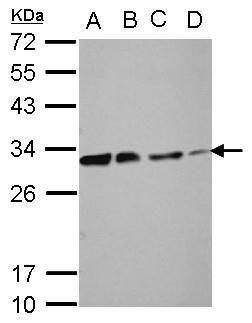 DCK Antibody (PA5-27787) in Western Blot