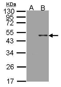 Arylsulfatase B Antibody (PA5-27794) in Western Blot