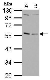 GABPA Antibody (PA5-27795)