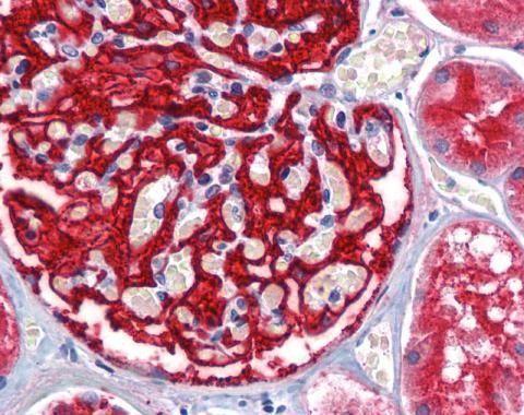 CD249 Antibody (PA5-27798) in Immunohistochemistry (Paraffin)