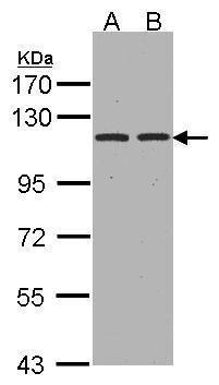 CD249 Antibody (PA5-27798) in Western Blot