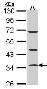 PTER Antibody (PA5-27801) in Western Blot