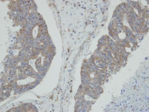 NMI Antibody (PA5-27804)