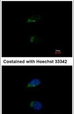 JIK Antibody (PA5-27809) in Immunofluorescence