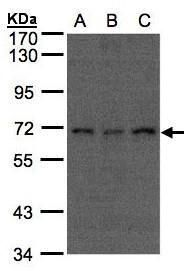 APC6 Antibody (PA5-27812) in Western Blot