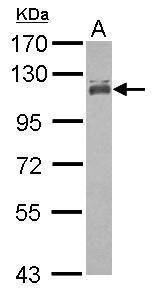 MCC Antibody (PA5-27813) in Western Blot