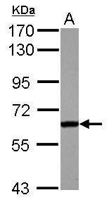 FGR Antibody (PA5-27815) in Western Blot