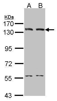DNA Ligase I Antibody (PA5-27820) in Western Blot